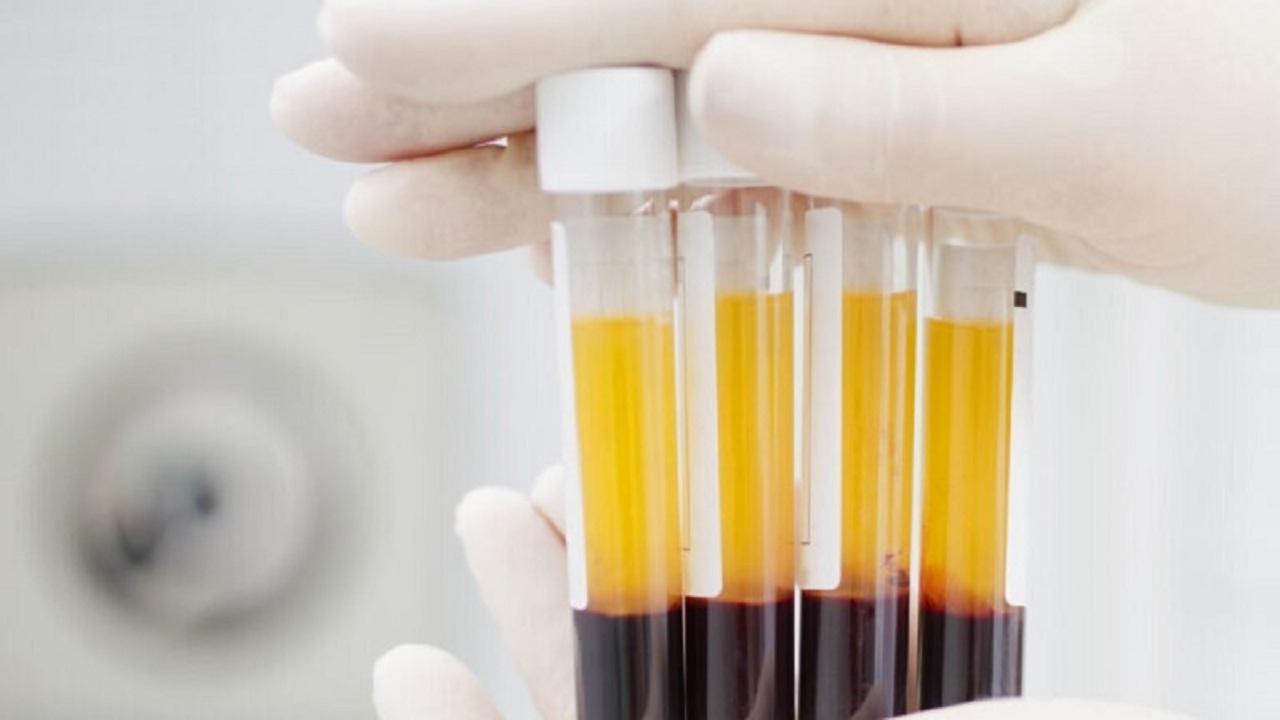 ۱۳۴ واحد پلاسما بیماران بهبود یافته از کرونا در استان همدان اهدا شد